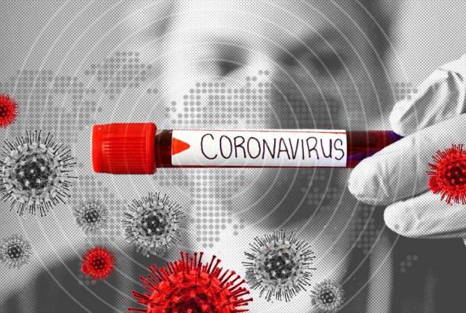 Գիտնականները դեղամիջոցներ են գտել, որոնք դանդաղեցնում կամ նույնիսկ կասեցնում են SARS-CoV-2 վիրուսի բազմացումը